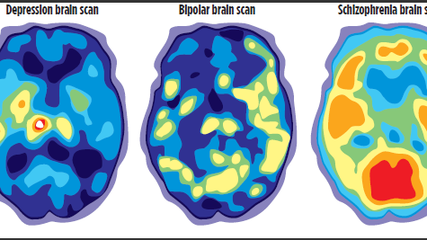 Positron emission tomography (PET) scans can compare brain activity during periods of depression with normal brain activity.  Graphic provided by Mayo Clinic
