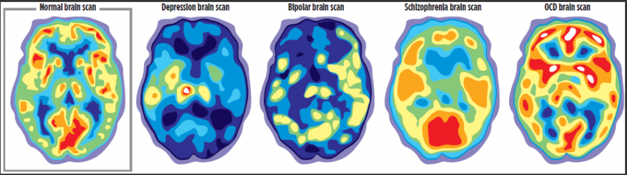Positron+emission+tomography+%28PET%29+scans+can+compare+brain+activity+during+periods+of+depression+with+normal+brain+activity.++Graphic+provided+by+Mayo+Clinic